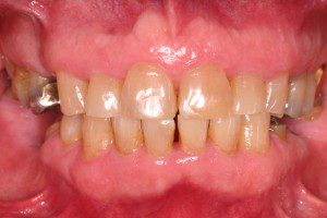 Full Mouth Rehab with Partial Denture Before